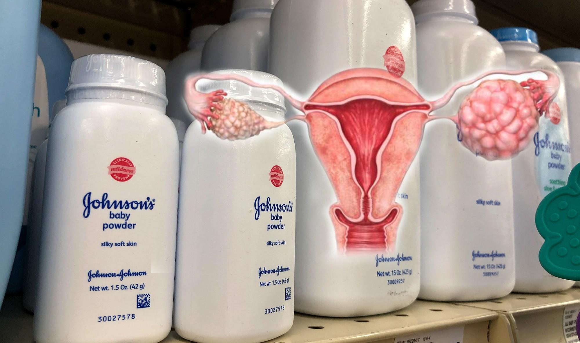 Talco Johnson & Johnson causa cáncer de ovarios - La Poderosa del Huila